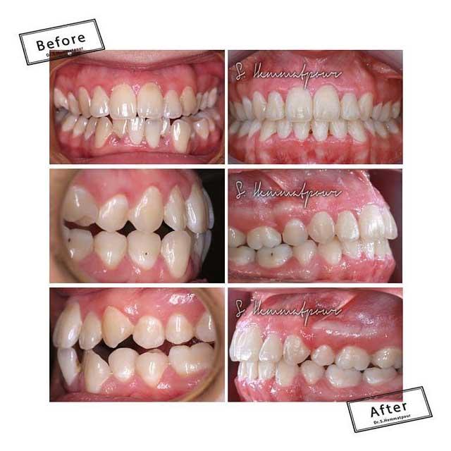 نمای دندانی درمان کراس بایت