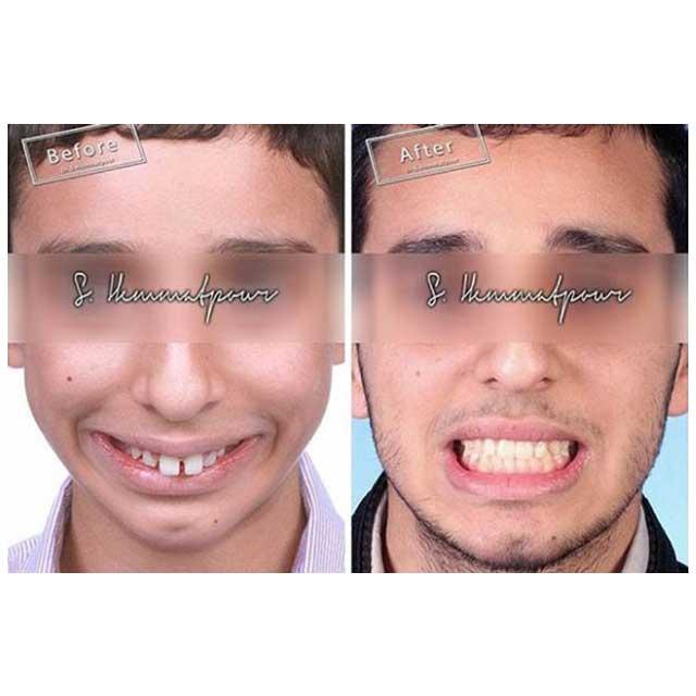نمای روبه رو درمان دیپ بایت